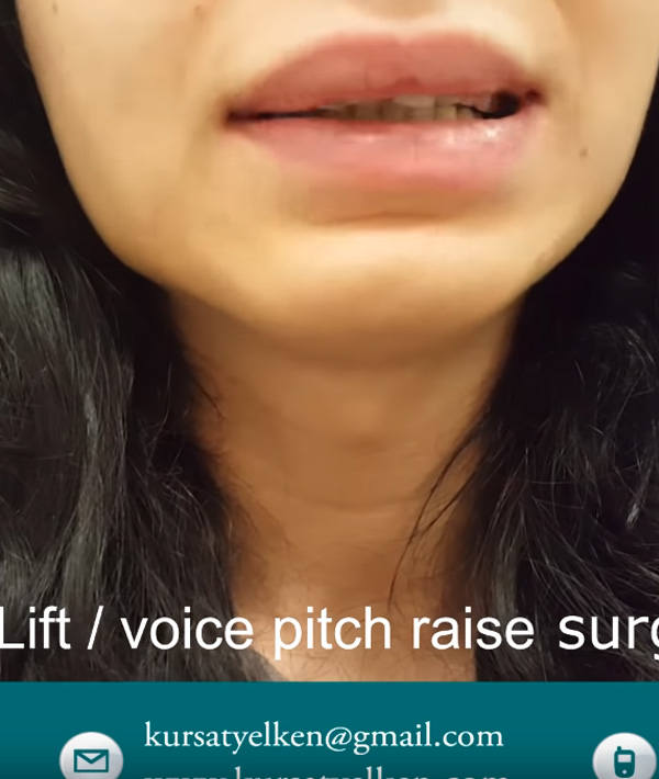 Voice Feminization Surgery, Voice Lift Surgery